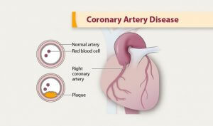 what medications do i take for coronary artery disease