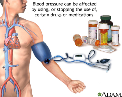 Is High Blood Pressure Medication Considered a Blood Thinner?