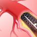 coronary artery disease and medications